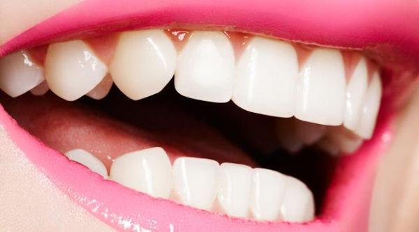 top-8-super-dicas-para-voce-ter-os-dentes-lindos1
